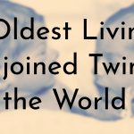 Oldest Living Conjoined Twins in the World